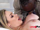 Doctor treats British MILF with his BBC